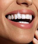 اصلاح طرح لبخند چیست؟