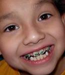 ارتودنسی در کودکان در چه سنی انجام می شود؟