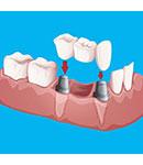 بهترین و مناسب ترین روش برای جایگزینی دندان از دست رفته چیست؟