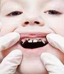 لزوم رعایت بهداشت دهان و دندان کودکان