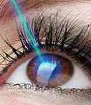 هر آنچه که درباره لیزیک و لازک چشم باید بدانیم