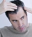 ۱۰ توصیه به آقایان برای مراقبت از مو و درمان ریزش مو