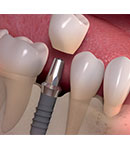 عواقب از دست دادن دندان ها