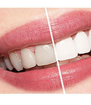 بلیچینگ، کامپوزیت و به طور کلی کارهای زیبایی دندانپزشکی عوارض دارند؟