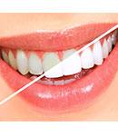 سفید کردن دندان ها (بیلیچینگ)