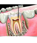 دندان درد ندارم، چرا باید عصب کشی کنم؟
