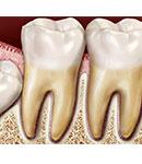 با دندان عقل خود چه کنیم؟