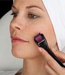 عملکرد میکرونیدلینگ برای زیبایی پوست