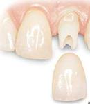 """پروتز دندان چیست و انواع """"پروتز دندان"""" کدامند؟"""