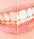 خدمات دندانپزشکی زیبایی کدامند؟