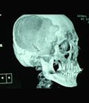 یک شیوه نوین برای درمان جراحی سکتههای مغزی