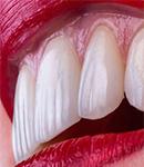 ونیر کردن دندان