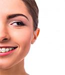 اصلاح طرح لبخند چیست و چگونه انجام می شود؟