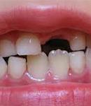 اهمیت توجه به بهداشت دندان های شیری