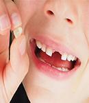 دندان های زودرس