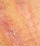 با عوامل ایجاد کننده ترک خوردگی پوست اشنا شوید