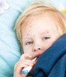 علائم و درمان مخملک در کودکان