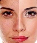 با این روشهای طبیعی پوست خود را روشنتر کنید
