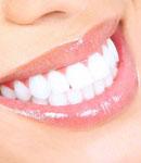 بلیچینگ یا سفید کردن دندان چیست ؟