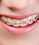 بهترین سن برای ارتودنسی دندانها چه سنی است؟
