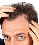 درمان ریزش موی سکه ای