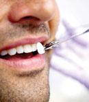 از دندانهای زرد و ساييده شدهتان خسته شدهايد؟