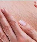 درمان ترک های بعد از زایمان
