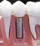 جایگزین جای دندان خالی در دهان چیست؟