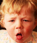 بیماری خروسک در اطفال، علائم و درمان