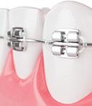 تصویربرداری در ارتودنسی دندان