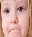 عفونت های ویروسی چشم