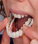 انواع روکش و پروتز دندان